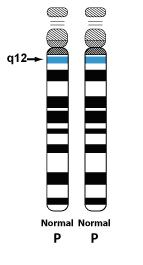 Chromosome 15 UPD
