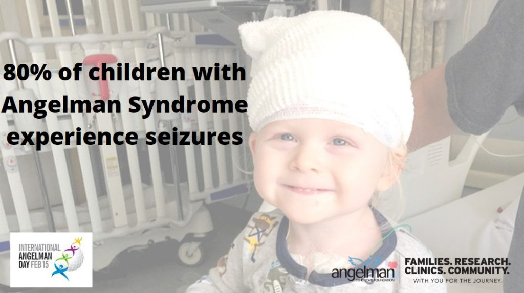 Seizures in Angelman syndrome